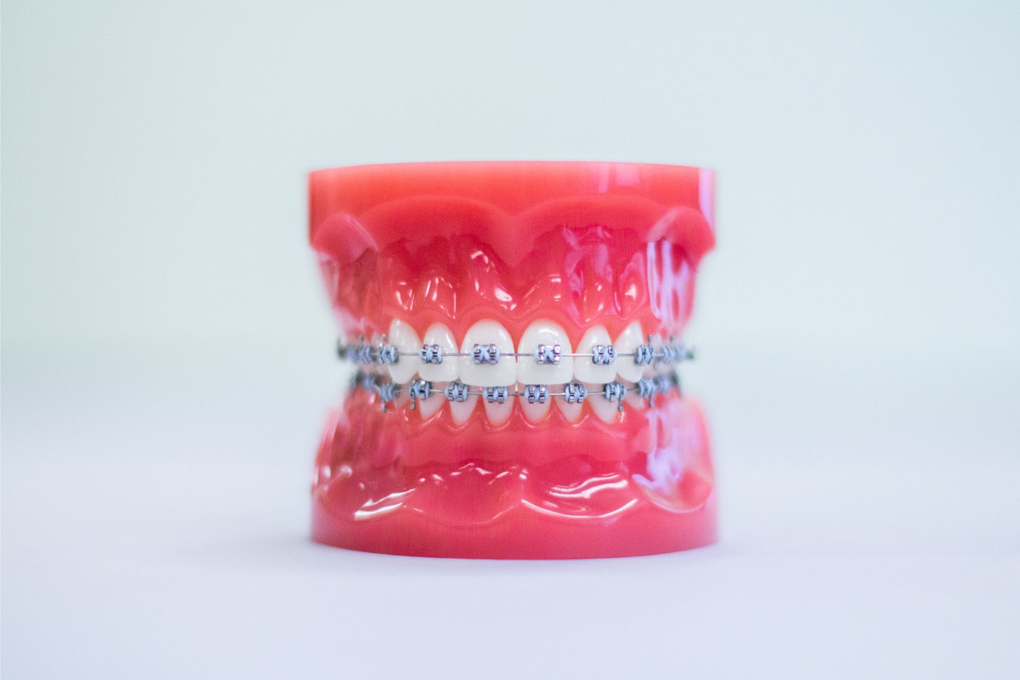 The Role Of Spacers And Rubber Bands In Orthodontic Work